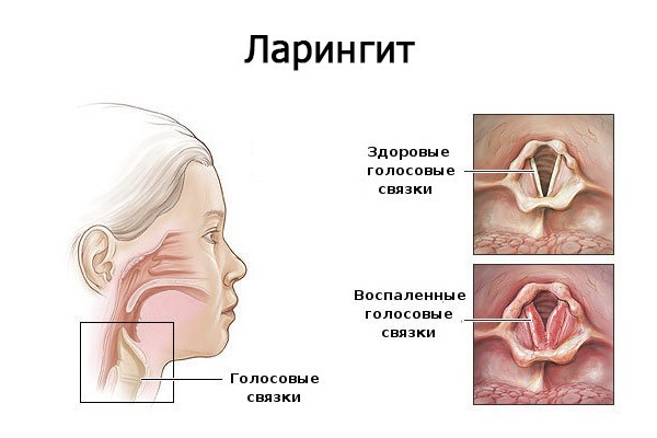 как выглядит ларингит в горле фото