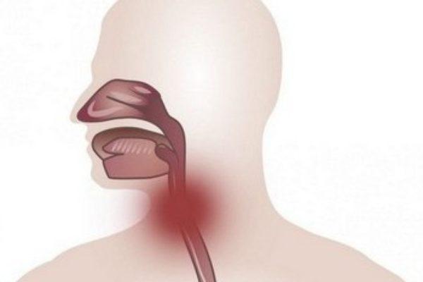laringofaringealnyj-reflyuks.jpg