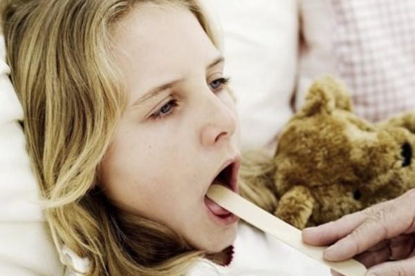 Диагностика ангины