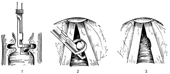 Схема операции по удалению узелков