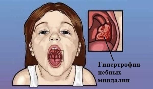 Увеличение миндалин у детей