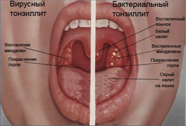 Отличие вирусного тонзилита