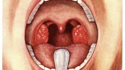Что нужно знать о хроническом тонзиллите