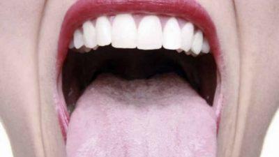 Какие симптомы у тонзиллита и как его лечить?