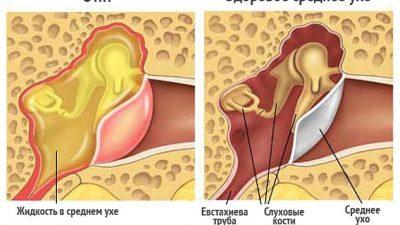 Причины, симптомы и лечение двустороннего отита