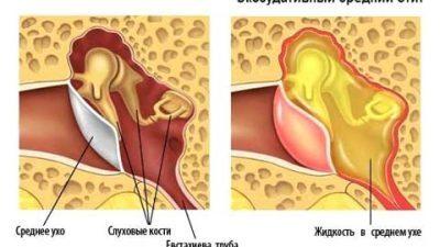 Чем опасен экссудативный отит? Методы лечения