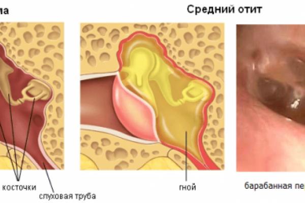 hronicheskiy-otit-e1495646818832.png