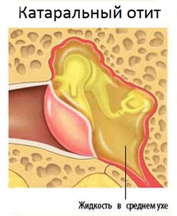 Жидкость в ухе при катаральном отите