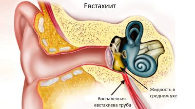 Причины, симптомы и методы терапии тубоотита