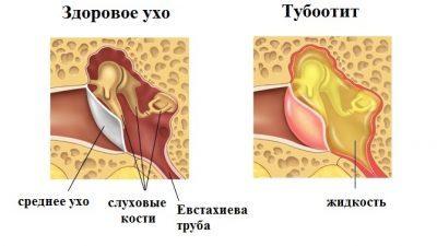 Современные методы лечения тубоотита у ребенка