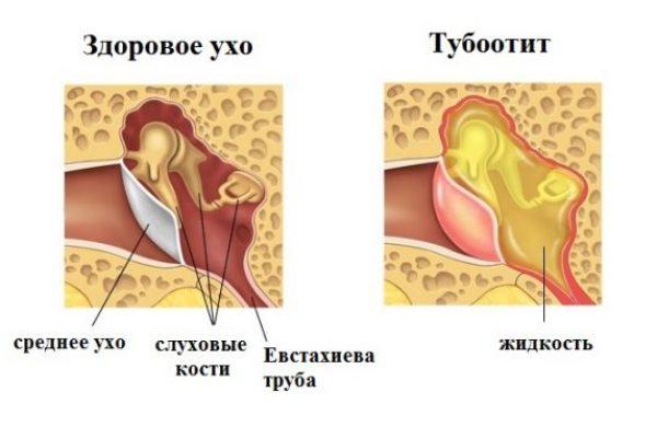 tubootit-u-rebenka2-e1495628634213.jpg