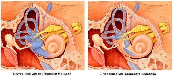 ухо здорового и болезнь меньера