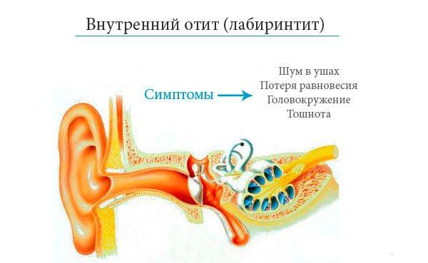Симптомы и схема
