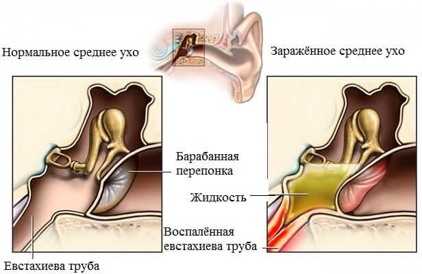 Анатомия заболевания