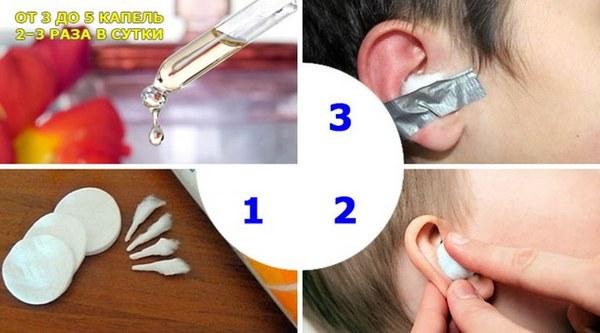 Борный спирт в ухо - инструкция по применению 952