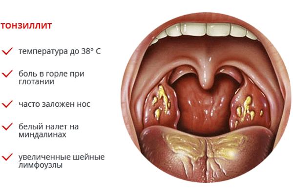 Вылечить хронический тонзиллит